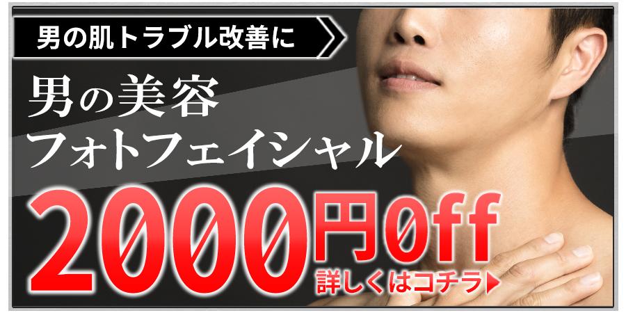 美容フォトフェイシャル2000円offキャンペーン