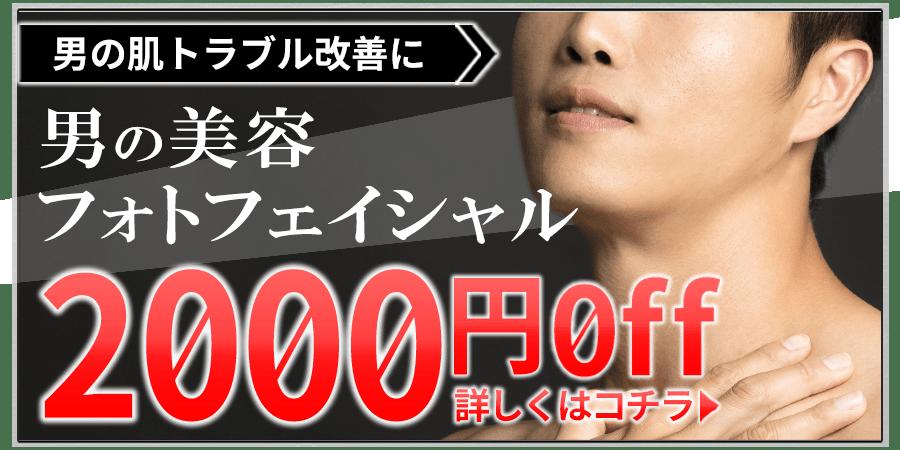 メンズ脱毛フィーゴ初回限定フォトフェイシャル2000円オフキャンペーン